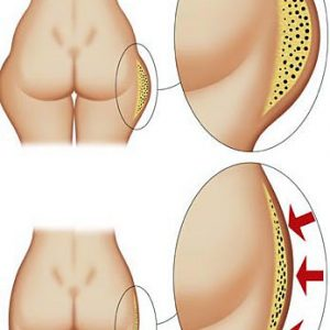 cellulite in sovrappeso