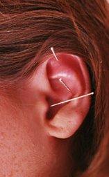 dieta-e-agopuntura-per-dimagrire-le28099-agopuntura-contro-attacchi-di-fame-nervosa-da-ansia-e-stress
