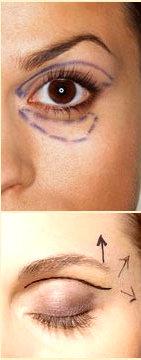L intervento di lipofilling come alternativa alla blefaroplastica per eliminare borse sotto gli occhi