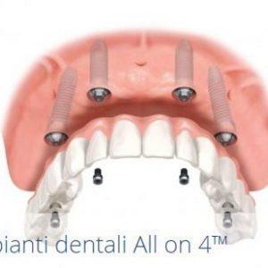 Sostituire i denti mancanti: la soluzione migliore