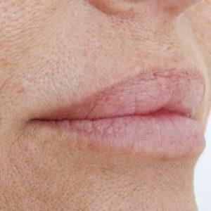 pelle secca rimedi efficaci