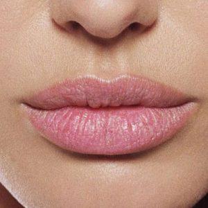 vietato silicone liquido per aumento labbra