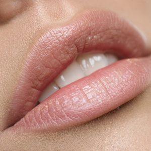 filler aumento labbra