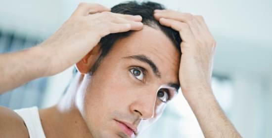 trapianto capelli calvizie