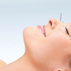agopuntura benefici