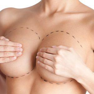 protesi seno modelli migliori