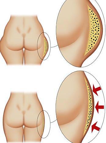 cellulite in sovrappeso