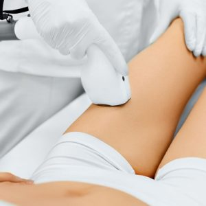 depilazione-laser-permanente