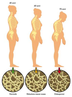 prevenire osteoporosi cura
