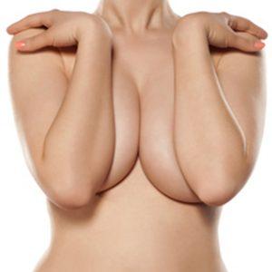riduzione-seno-con-mastoplastica-riduttiva