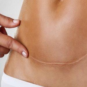 trattamento-cicatrice-cesareo