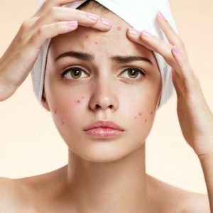 acne-giovanile-cura