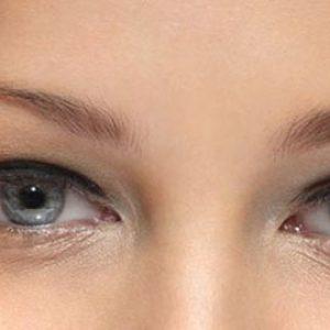botulino viso effetti collaterali