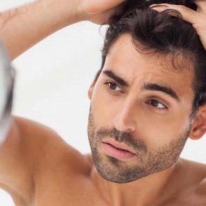 caduta capelli rimedi calvizie