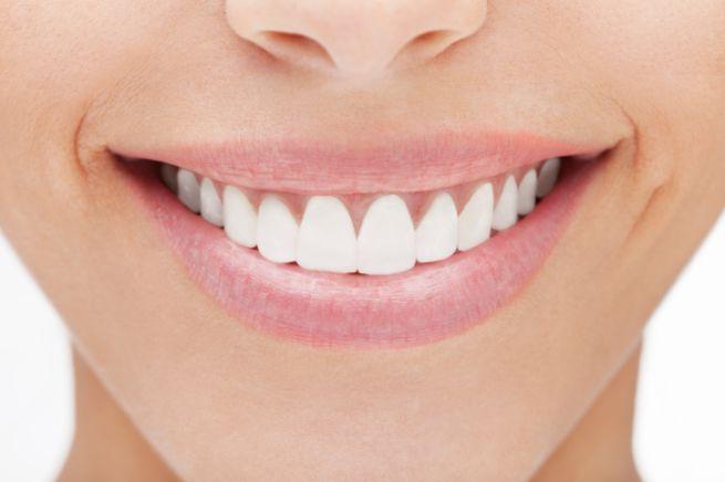 vantaggi centri dentistici opinioni