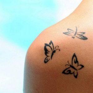 come eliminare tatuaggio