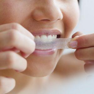 strisce sbiancanti per denti dove comprarle