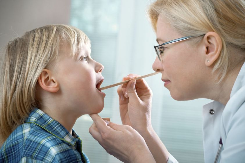 tonsille gonfie e placche antibiotici