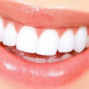 sbiancamento denti come funziona