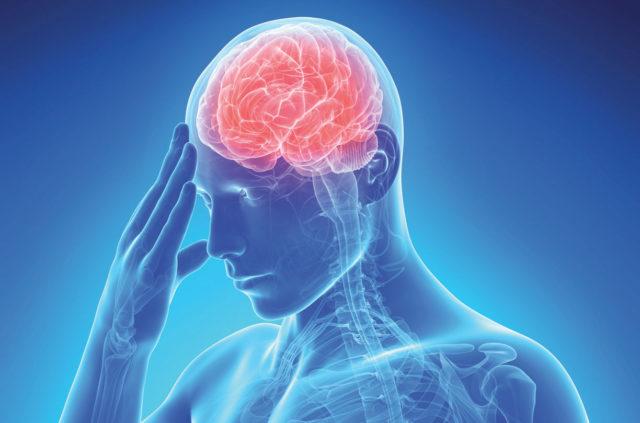ictus cerebrale sintomi