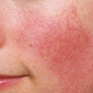 acne rosacea sintomi