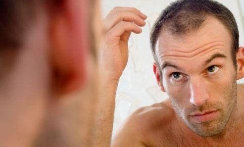 caduta capelli uomo trapianto turchia
